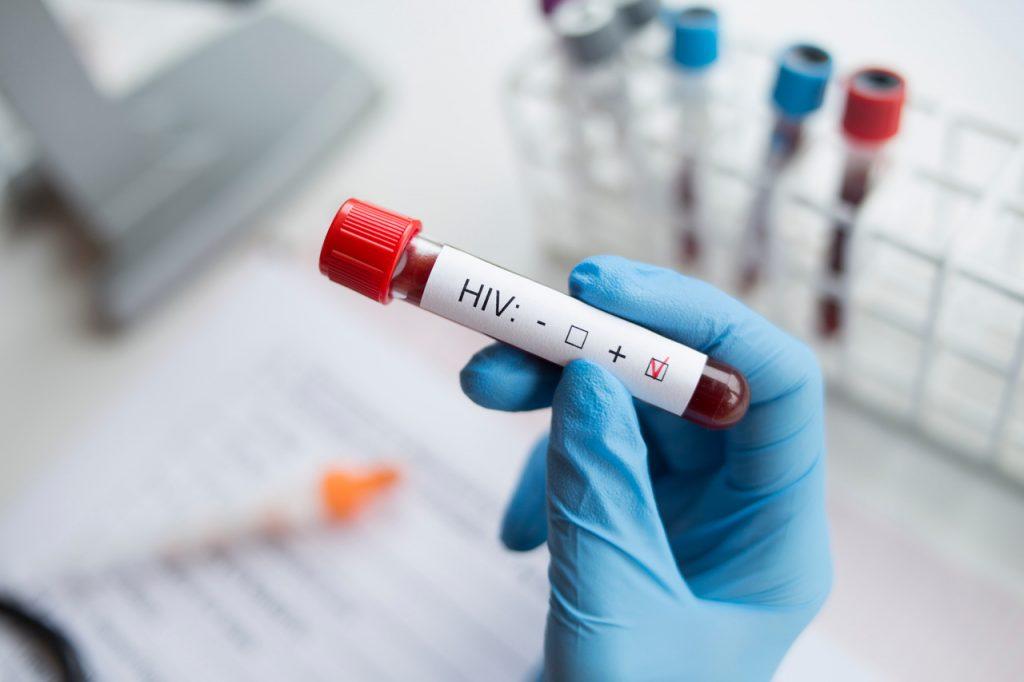 Badanie HIV – diagnosta trzymający próbkę z pozytywnym wynikiem testu na HIV